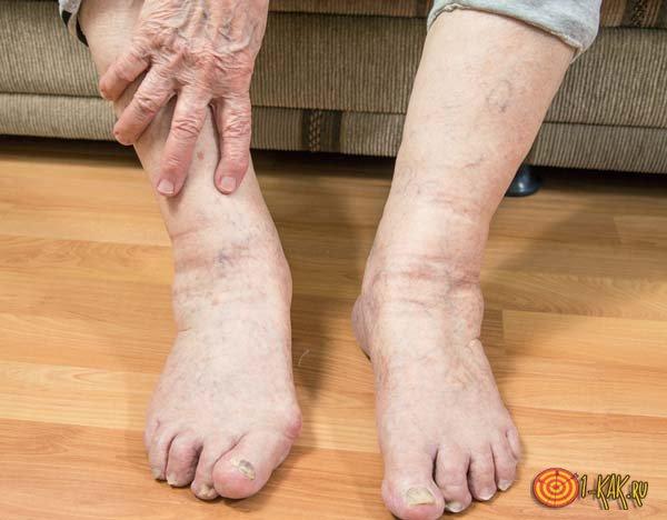 Пожилой человек с отекшими ногами