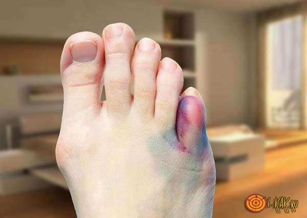 На ногу упал тяжелый предмет