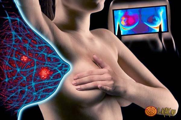 Мастопатия в груди