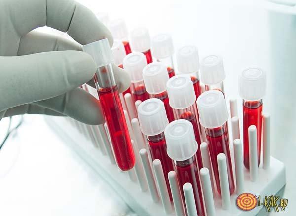 Результаты забора крови в пробирках