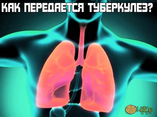 Как передается туберкулез от одного к другому