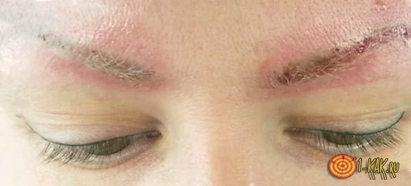 Чем лечится покраснение на коже у бровей