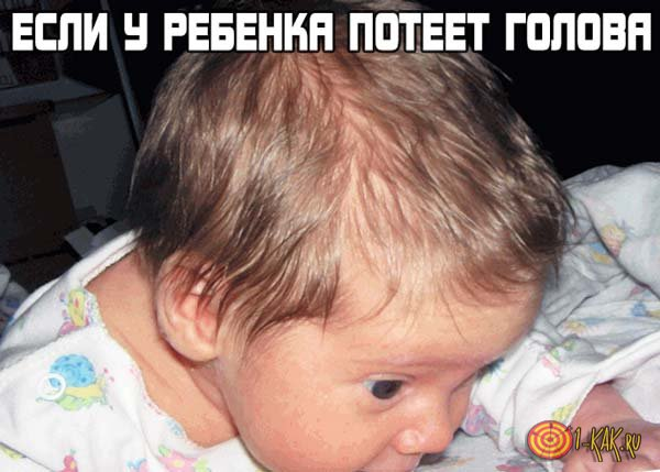 Потеет голова у ребенка во сне