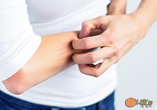 Корковая чесотка на руке