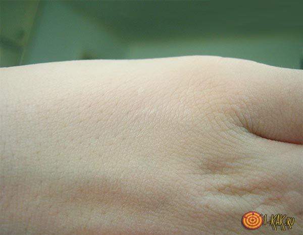 Чистая здоровая кожа