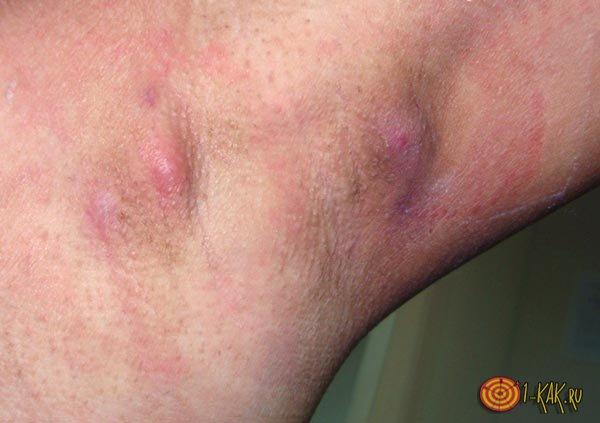 Увеличенные лимфоузлы на ноге