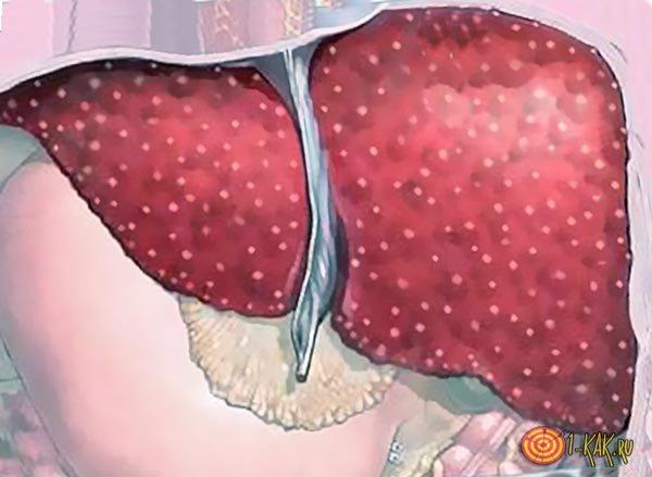 Явный запущенный цирроз
