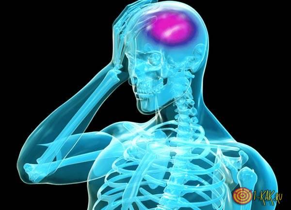 Нарушение кровообращения головного мозга - резульат