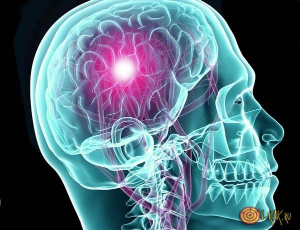 Так выглядит инсульт в голове