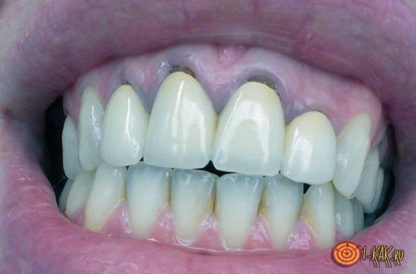 Металлокерамические коронки в полости рта