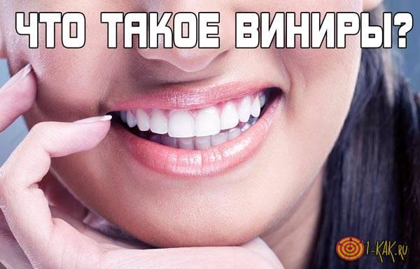 Что такое виниры на зубах?