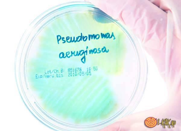 Псевдомонада под микроскопом
