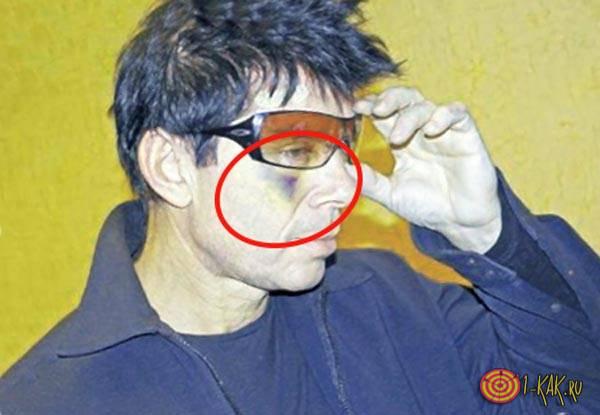 Газманов после аварии