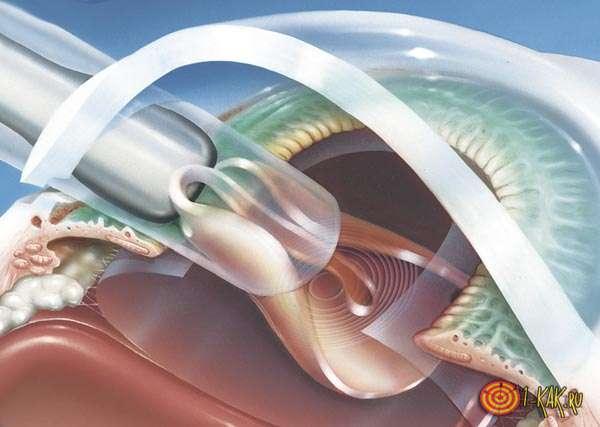 Проводится рефракционная хирургия