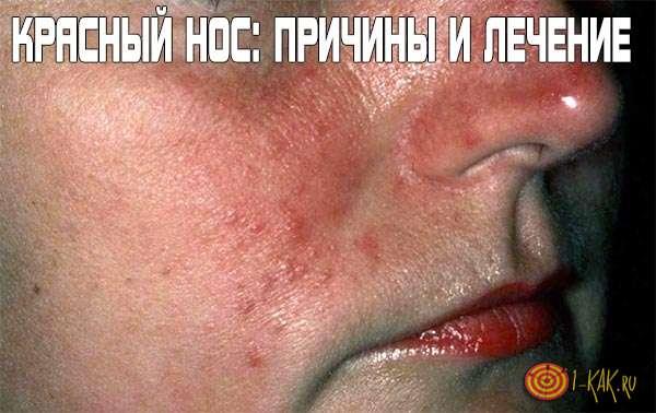 Красный нос - причины и лечение болезни