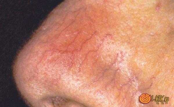 Заболевание - красный нос