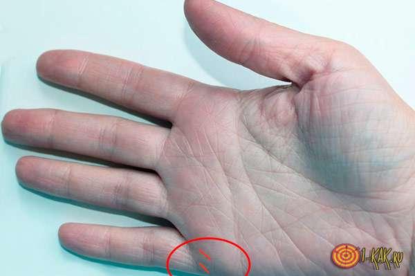 Правая рука и складки - узнать количество